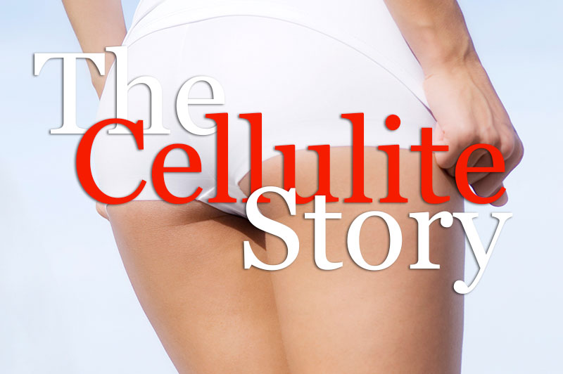 The Cellulite Story
