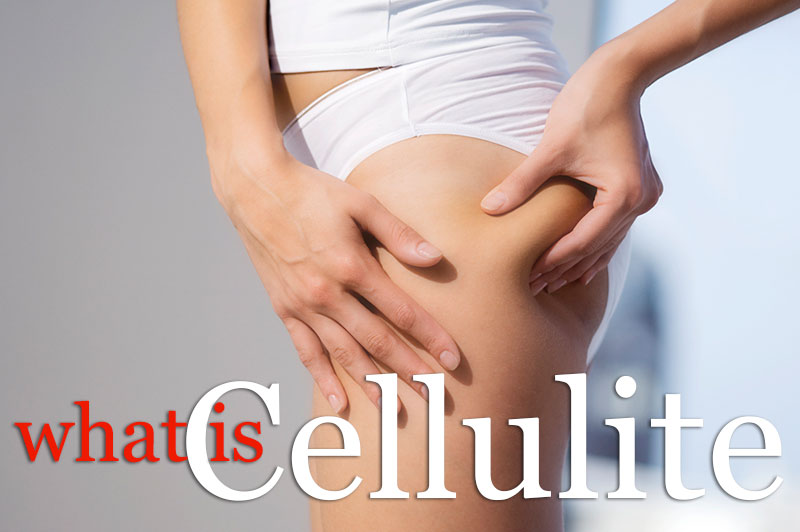 What Is Cellulite?